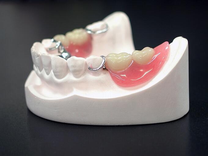 バネのある入れ歯(保険治療)