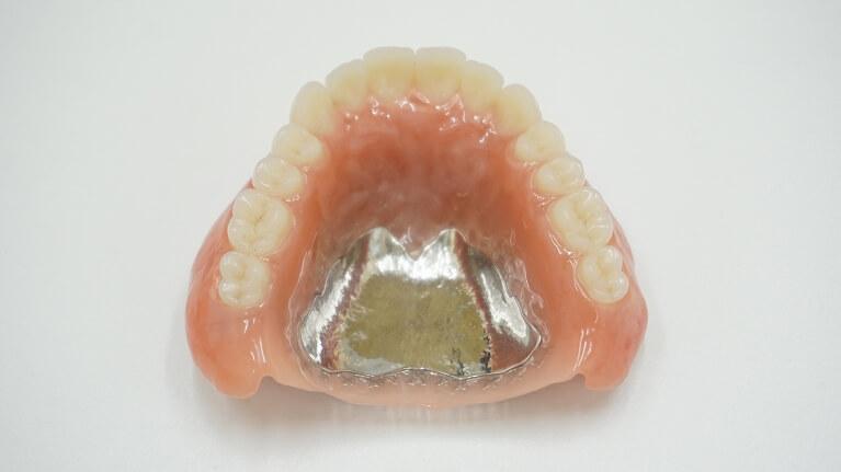 金属で出来た入れ歯(自費治療)