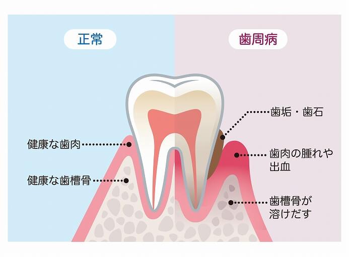 歯周病の治療って?