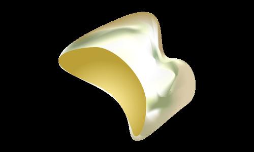 貴金属(金色)の被せ物(臼歯)