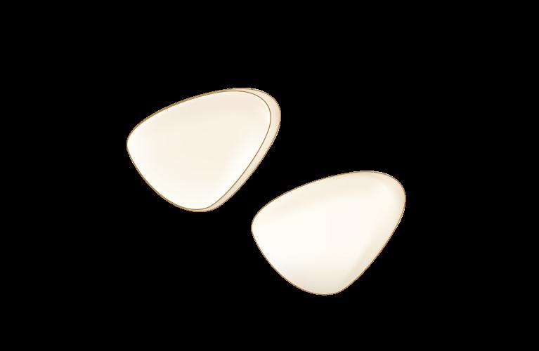 ラミネートべニア(前歯)